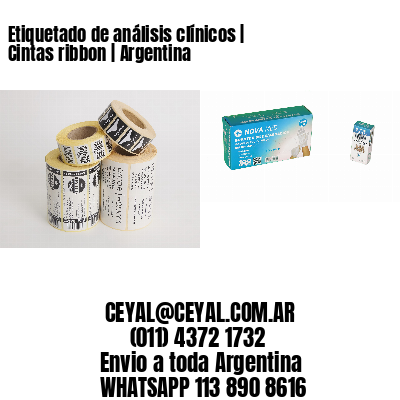 Etiquetado de análisis clínicos   Cintas ribbon   Argentina